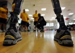 Photo of two leg prosthetics