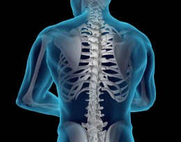Spinal X-ray