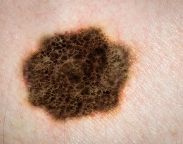Local dermatologists to offer free skin cancer screenings May 9-13